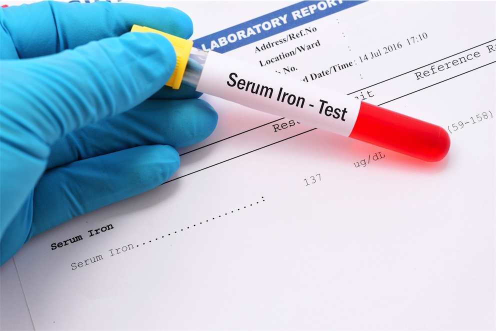 Is iron deficiency the cause of your fatigue?