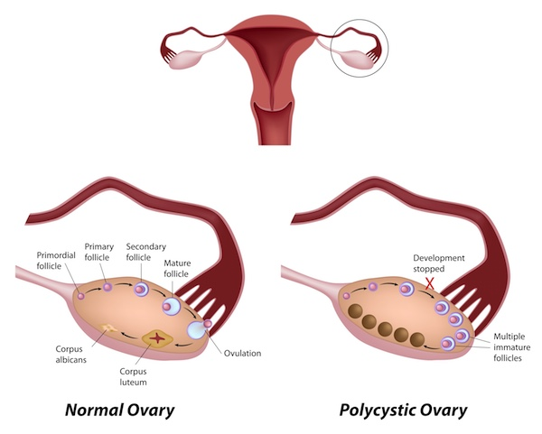 PCOS diagram
