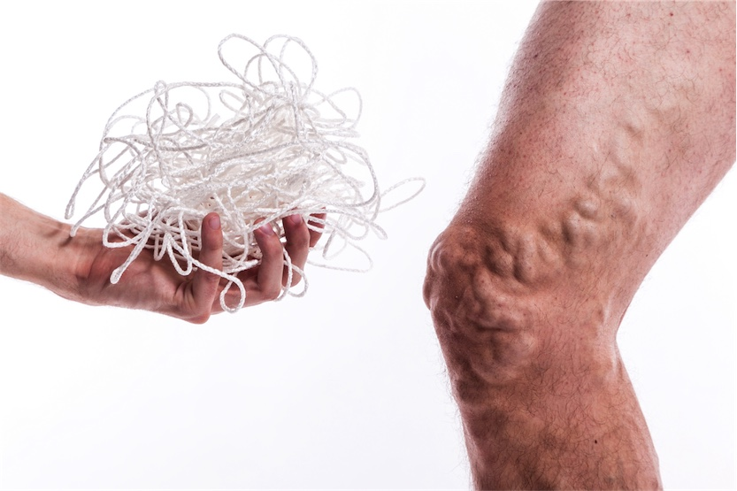 Natural help for varicose veins