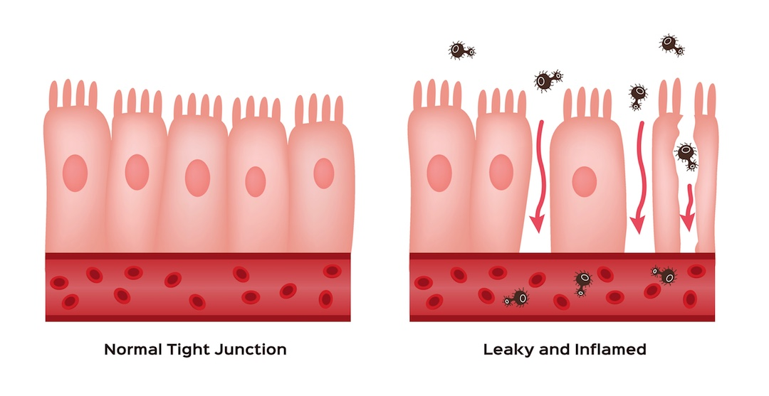 diagram of intestinal permeability